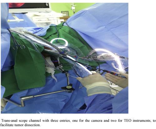 Anal endoscopic microsurgery trans