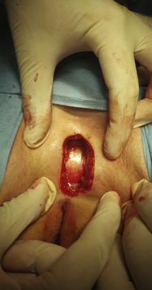 Semi-closed surgical technique for treatment of pilonidal