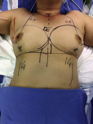 result breast reconstruction Poor