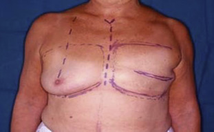 reconstruction breast Poor result