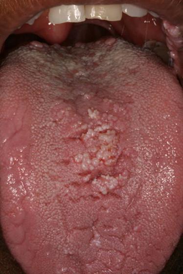condyloma acuminatum oral