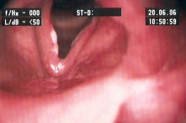 papilloma planoepitheliale przelyku