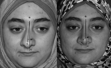 Crooked nose: The asymmetric face - ScienceDirect