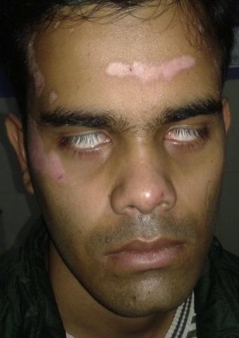sudden facial paralysis