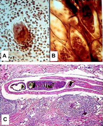schistosoma mansoni bilharziasis