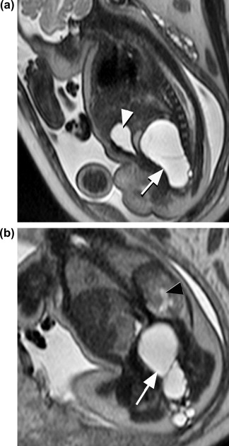 Fetal MRI: An approach to practice: A review - ScienceDirect