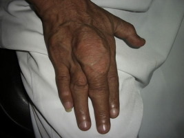 Gout: An old disease in new perspective – A review