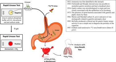 Helicobacter pylori urease for diagnosis of Helicobacter