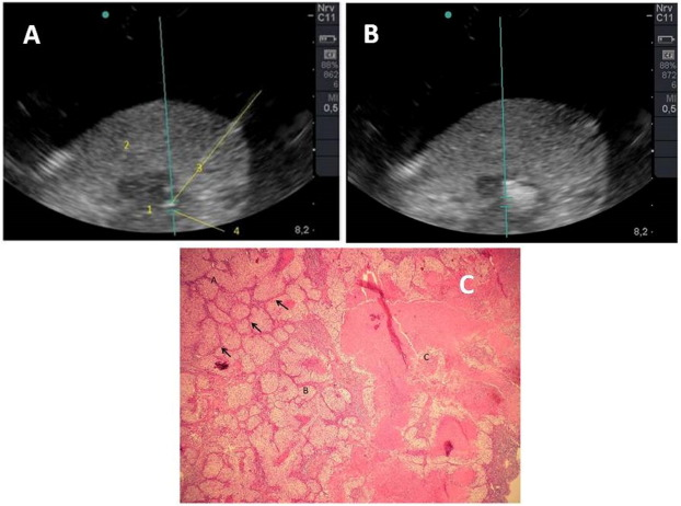 A review on the use of magnetic fields and ultrasound for
