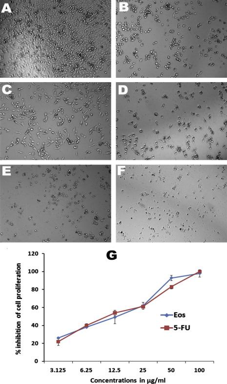 In vitro antimetastatic activity of Agarwood (Aquilaria