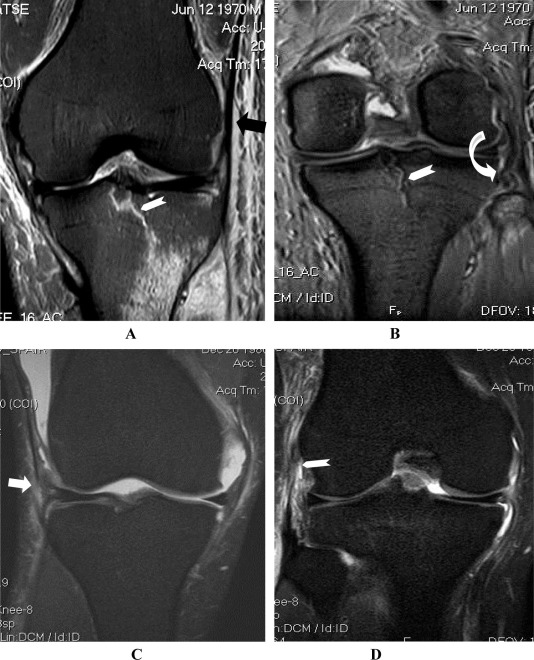 MRI of the posterolateral corner of the knee, please have a look ...
