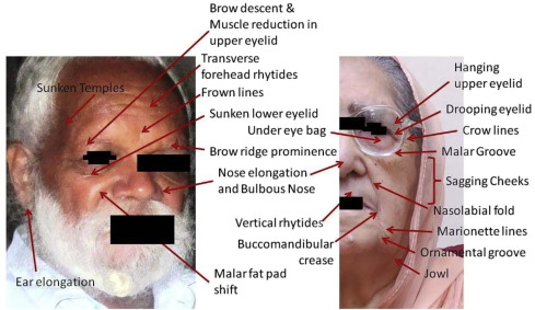 Analysis of facial soft tissue changes with aging and their