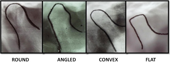 reveal the concealed morphological variations of the coronoid