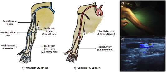 Minimally invasive basilic vein transposition in the arm or forearm ...