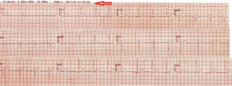 An electrocardiographic anxiety- induced quadrigeminy and re