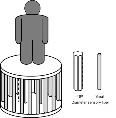 The contribution of small and large sensory afferents to