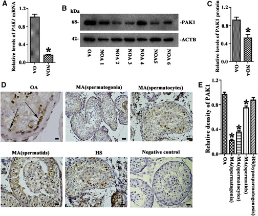 PAK1 Promotes the Proliferation and Inhibits Apoptosis of