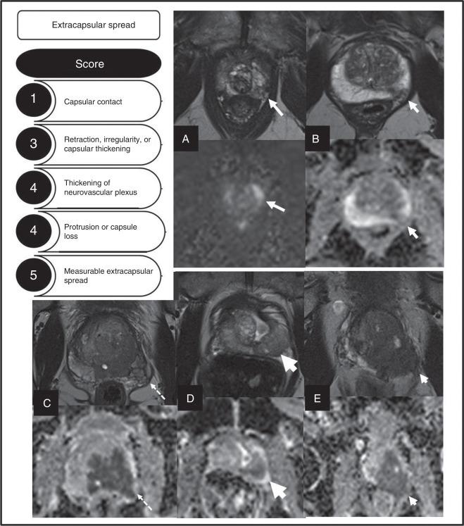 extensión extracapsular próstata centro de gleason