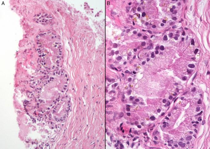 adenocarcinoma acinar prostatico grado 6