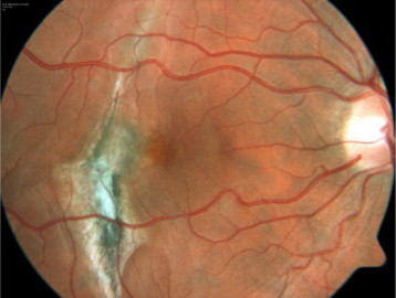 Juxtafoveal Lesion In The Choroidal Rupture Area With Subretinal Fluid Corresponding To Neovascularization