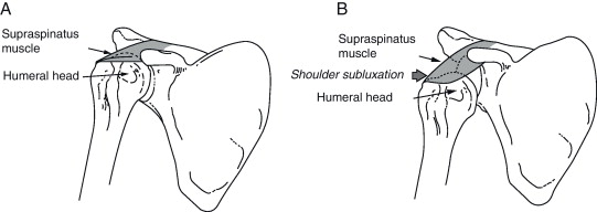 b shoulder subluxation during the initial phase of hemiplegia the supraspinatus is flaccid