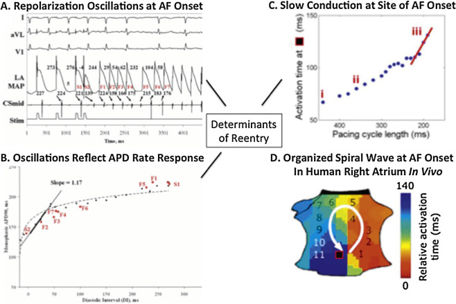 The continuous challenge of AF ablation: From foci to