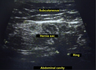 A differential diagnosis in chronic lower abdominal pain