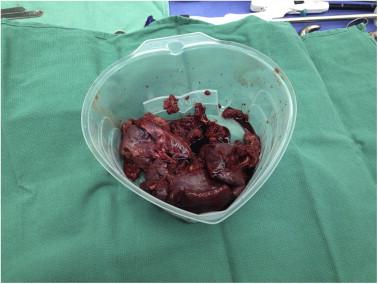 Splenic cyst during pregnancy ScienceDirect