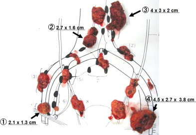 Recurrent Ovarian Cancer With Multiple Lymph Nodes Metastases Successfully Treated With Lymphadenectomy As Secondary Cytoreductive Surgery A Case Report Sciencedirect