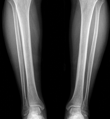 An Unusual Stress Fracture Bilateral Posterior Longitudinal Stress Fracture Of Tibia Sciencedirect