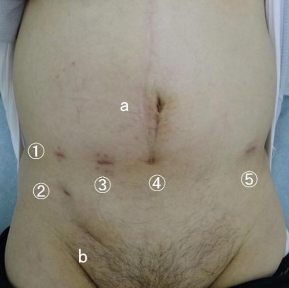 Totally Extraperitoneal Inguinal Hernia Repair During