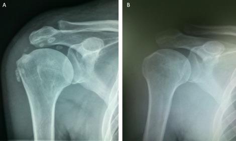 Fractura ligamentului lateral intern al tratamentului articula?iei genunchiului