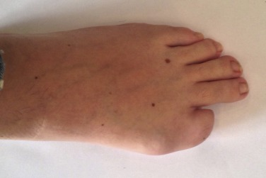 Sarcoma cancer of the foot, Soft Tissue Sarcomas - FAQ with Dr. Adam Levin foot wart turning black