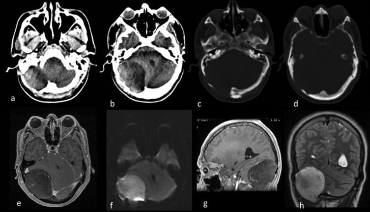Intradiploic epidermoid cyst with intracranial hypertension