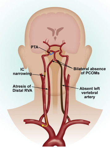 Pseudo Subclavian Steal Syndrome Case Report Sciencedirect