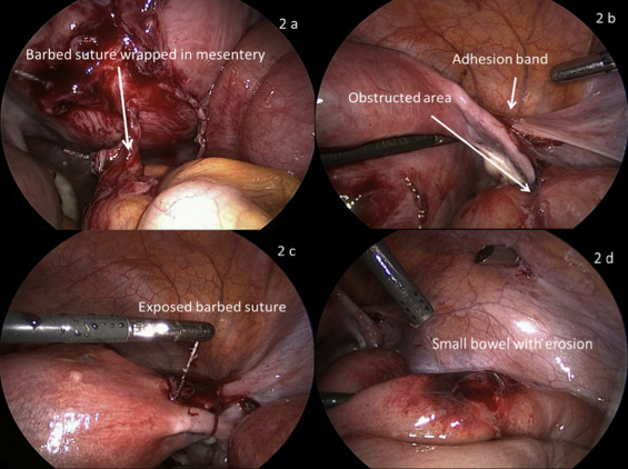 Small bowel obstruction from barbed suture following