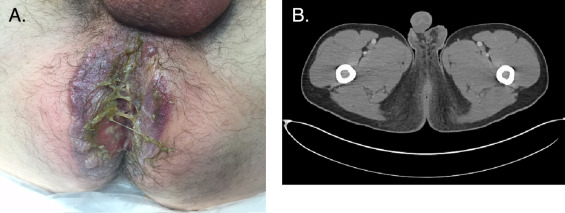 Perianal pyoderma gangrenosum after excision and fulguration