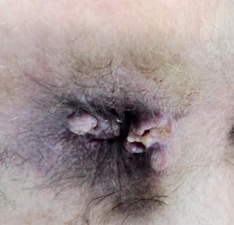 cum arată condilomul la femei sirop de podbal