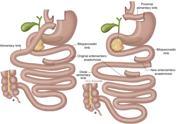 A Novel Technique Of Roux En Y Gastric Bypass Reversal For