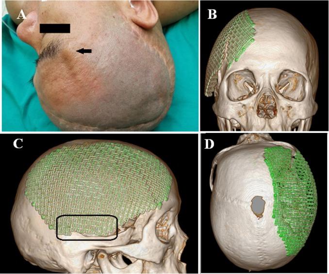 Spontaneous fracture of cranioplastic titanium implants
