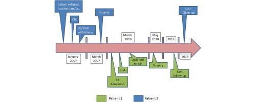 strangulated hiatal hernia