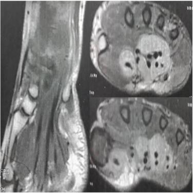 Tratamentul herniei la nivelul spatelui inferior