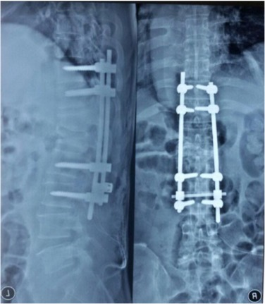 Pedicle screw position changing policy for nerve injury