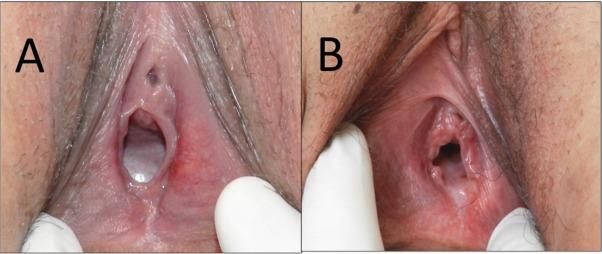Swollen male breast