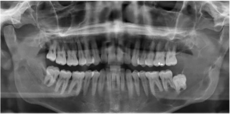 metastatic cancer jaw