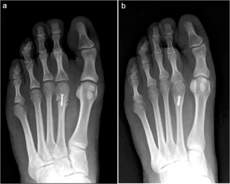 Freibergs Infraction A Modified Closing Wedge Osteotomy For An