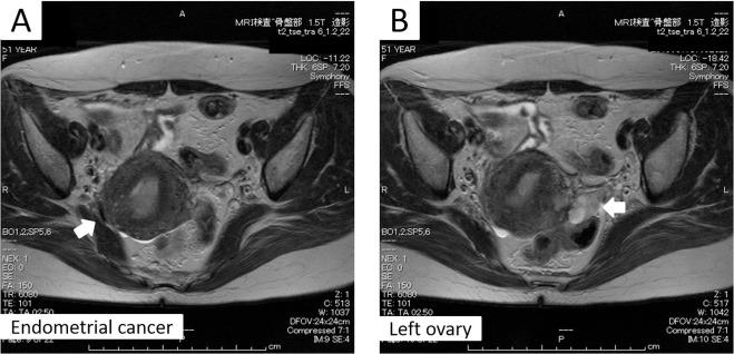 endometrial cancer or adenomyosis platelhelminthes coelom