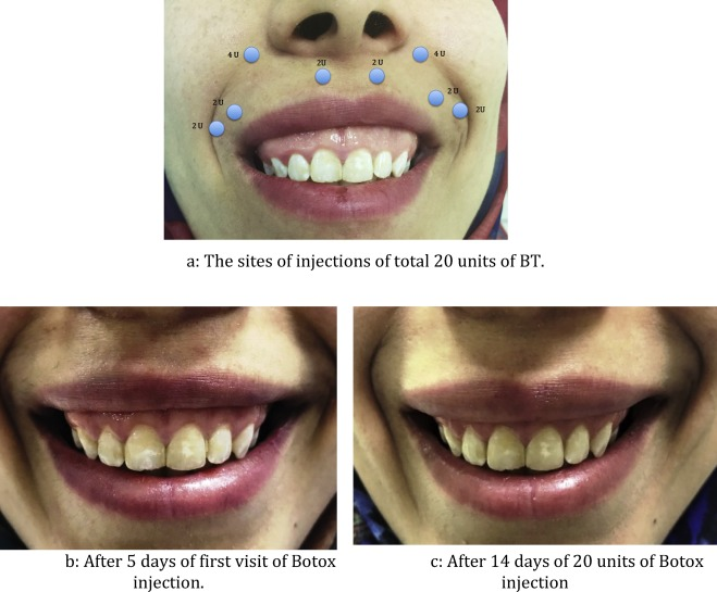 A successful management of sever gummy smile using