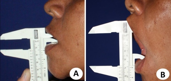 Total Bilateral Tmj Reconstruction For Pain And Dysfunction Case