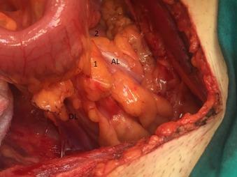 Anomalous course of the sigmoid colon and the mesosigmoid